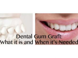 Dental Gum Graft