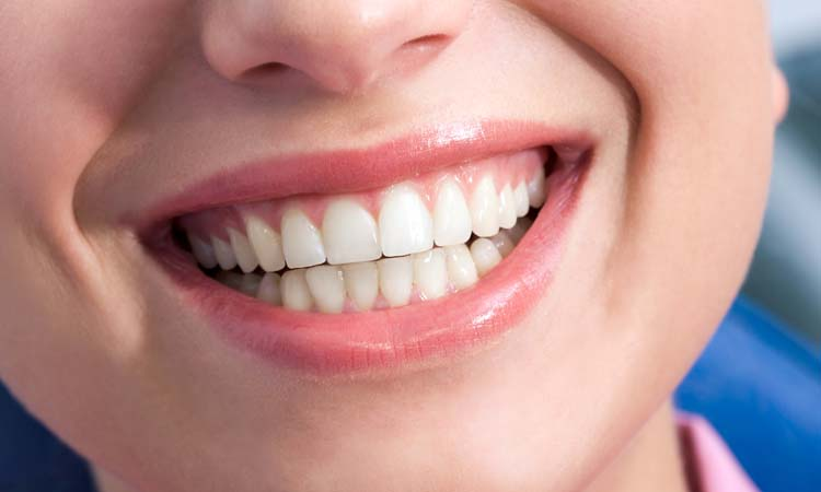 Dental Gum Graft in California: What It Is and When It's Needed