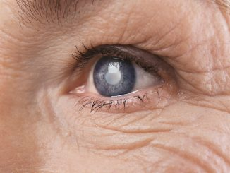 Degenerative eye condition