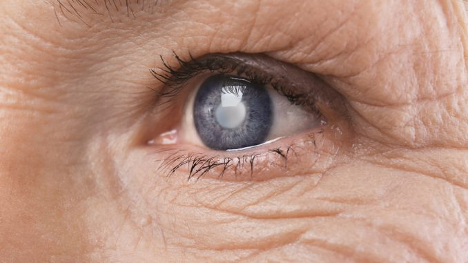 Degenerative eye condition